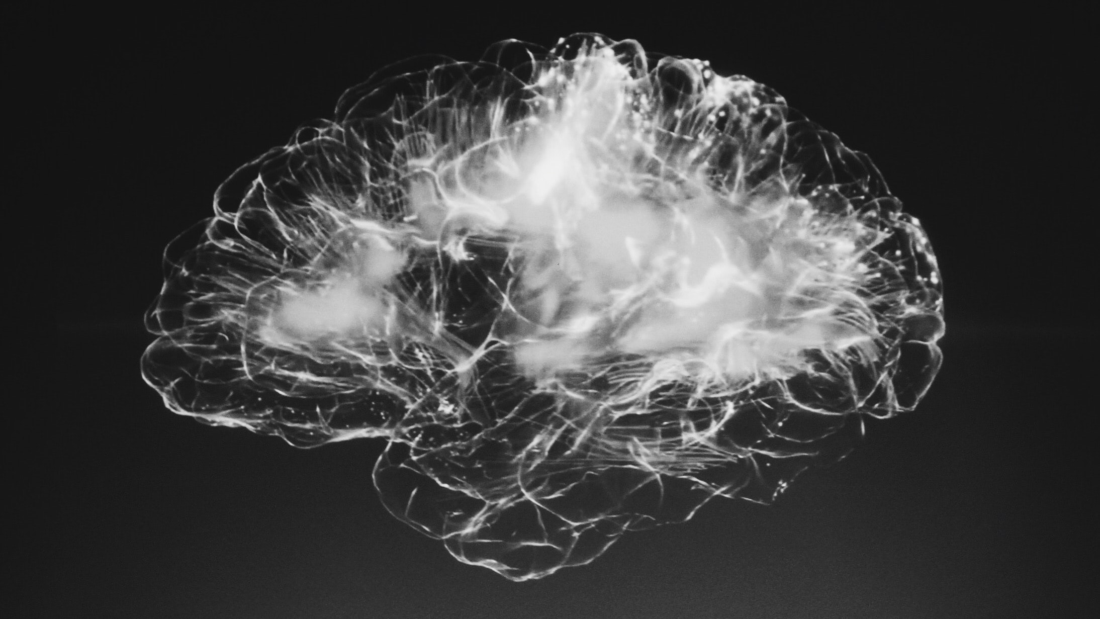 Visualisation of a brain